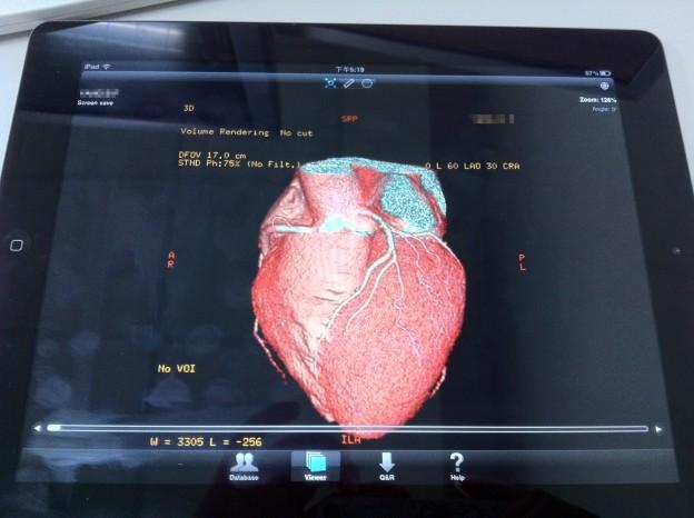 iPad_heart
