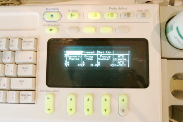 超音波 GE LOGIQ 500